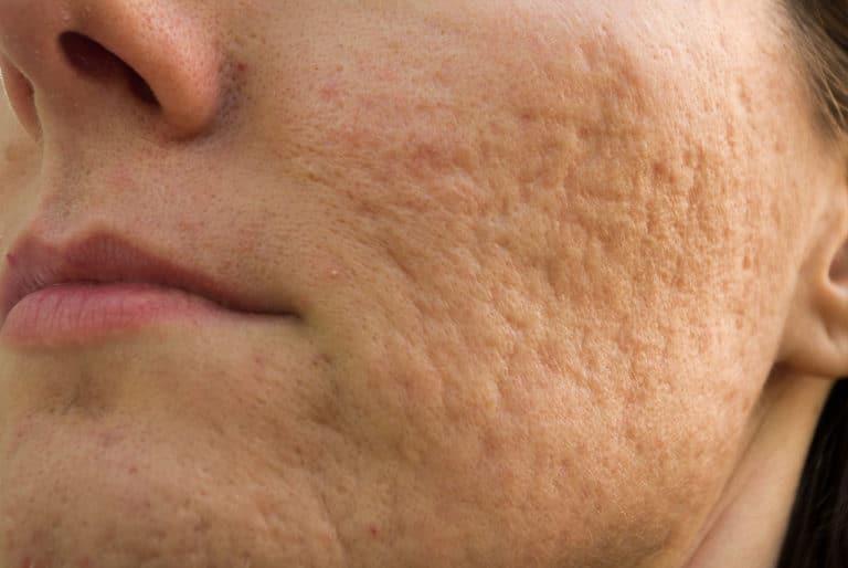 Akne im Gesicht