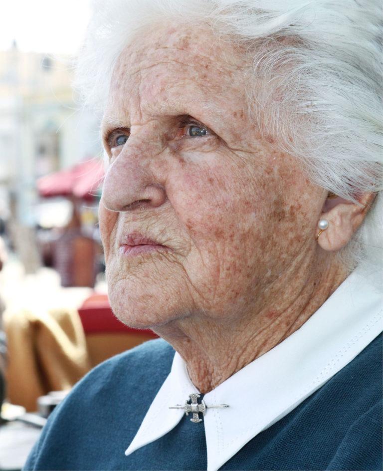 Frau mit Altersflecken