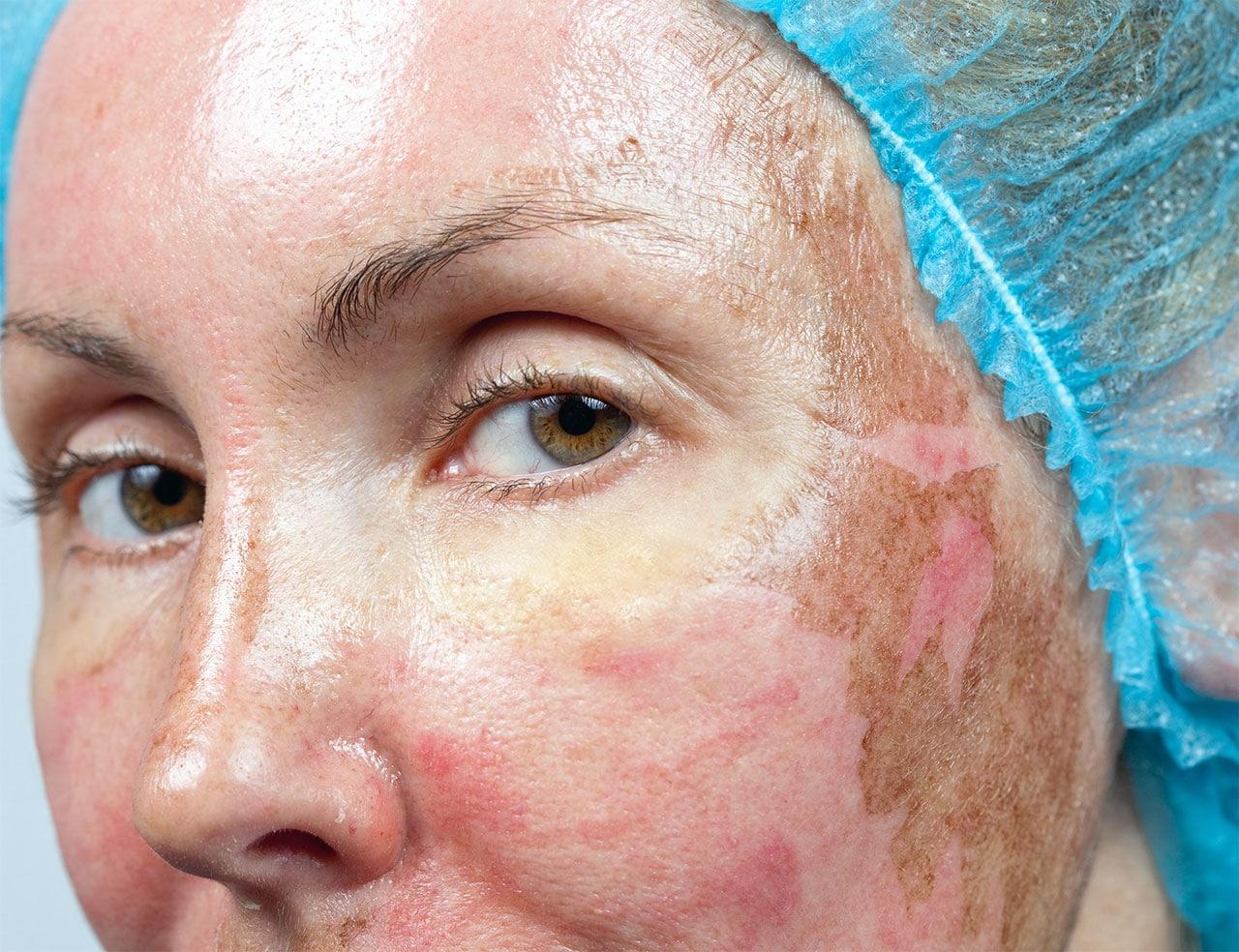 Chemisches Peeling im Gesicht