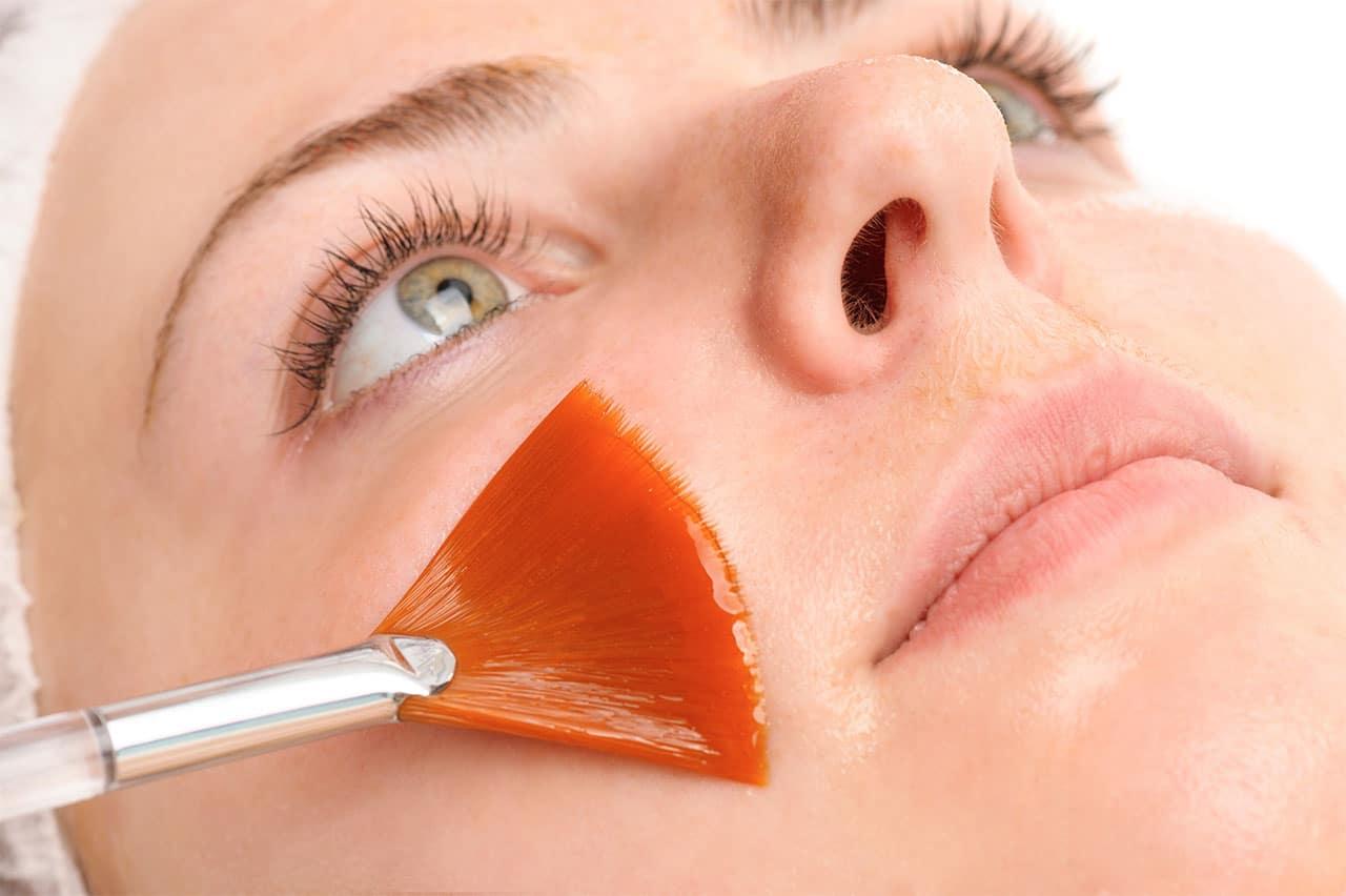 Chemisches Peeling mit Fruchtsäure