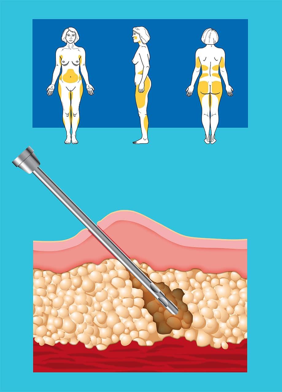 Eigenfett-Unterspritzung Schema