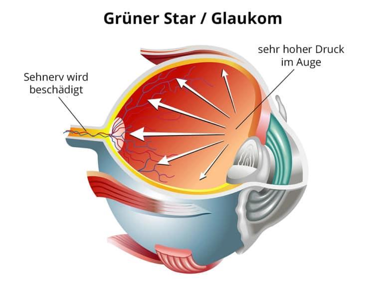 Glaukom / Schema