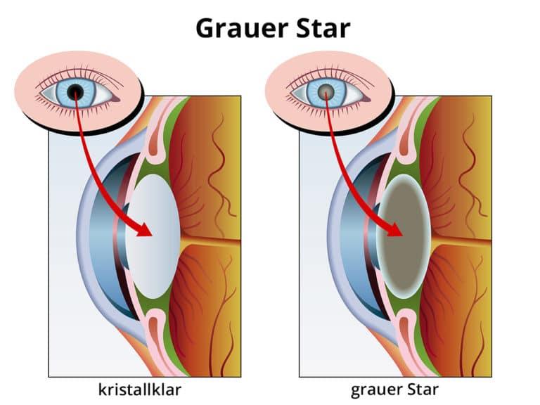 Grauer Star / Katarakt