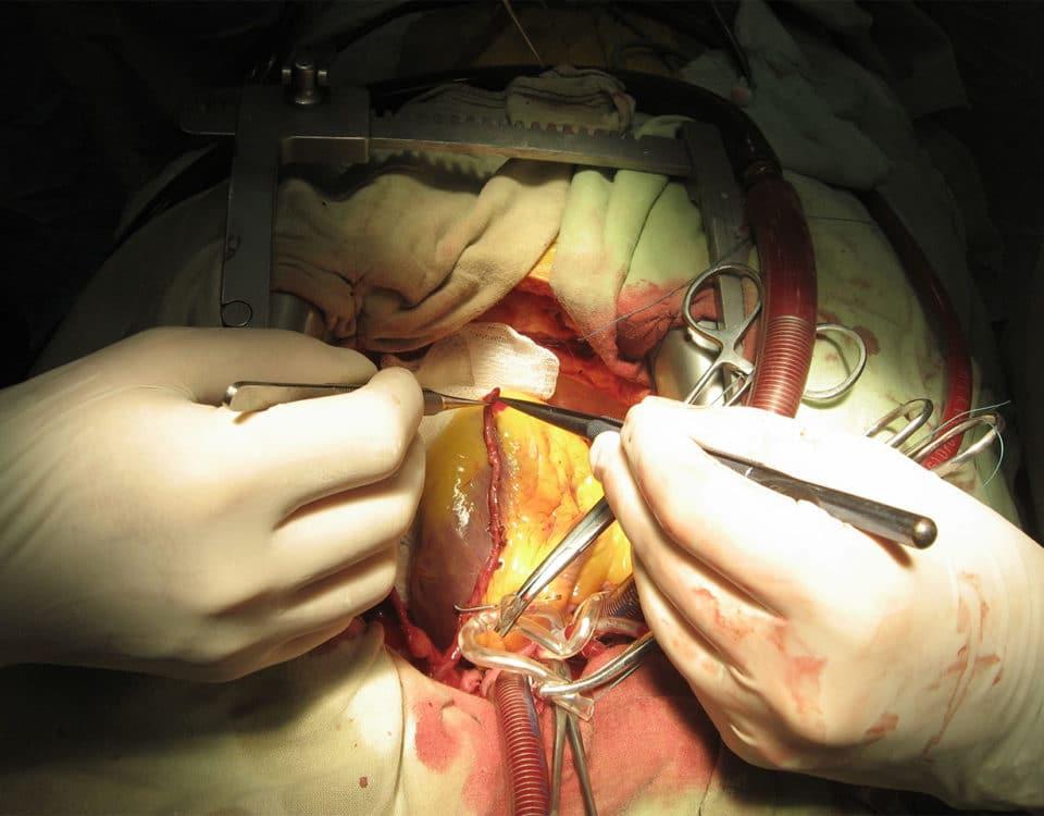 Herzkranzgefäß-Operation