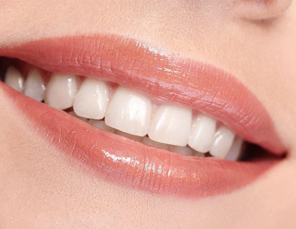 Lippenverkleinerung