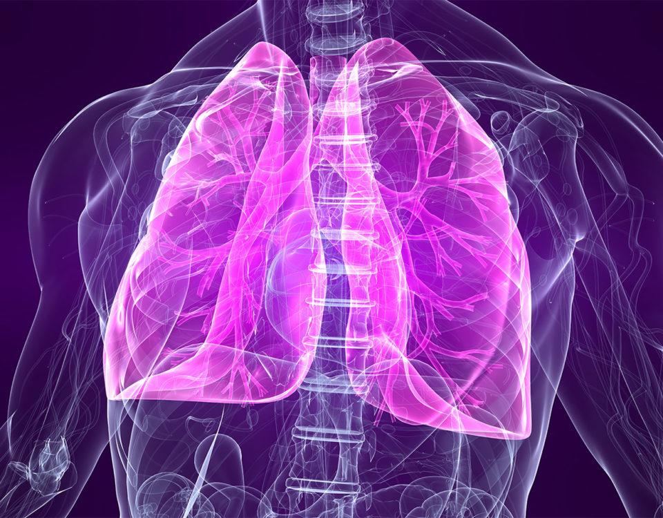 Lunge (Schema)