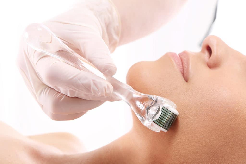 Mesotherapie im Gesicht
