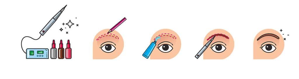 Mikropigmentation Schema