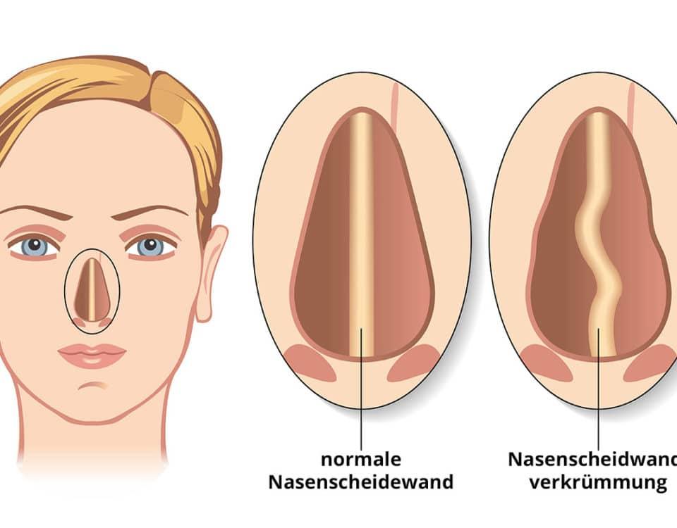 Nasenscheidewand - Schema