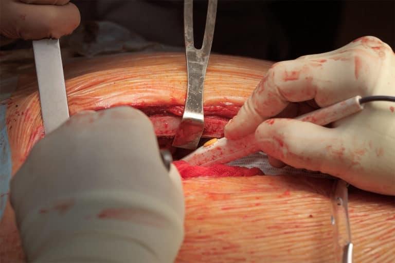 Osteosynthese-Materialentfernung