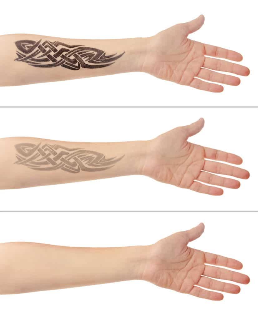 Tattooentfernung Konzept