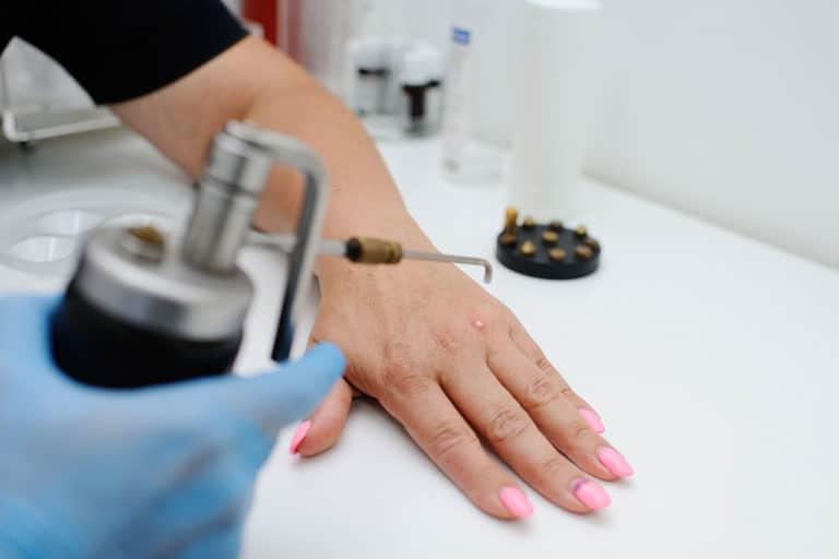 Warzenbehandlung an einer Hand