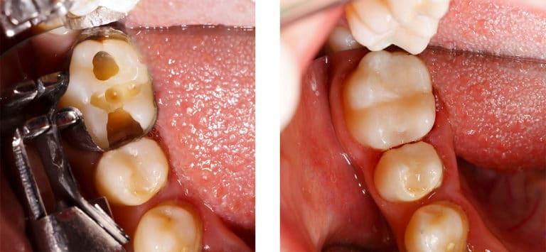 Zahn Kompositfüllung