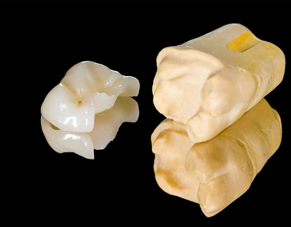 Teilkrone aus Keramik