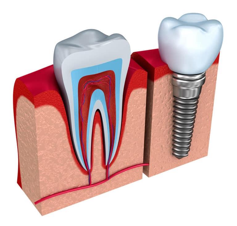 Zahnimplantat Schema